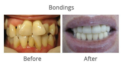 before-and-after-smile-gallery2