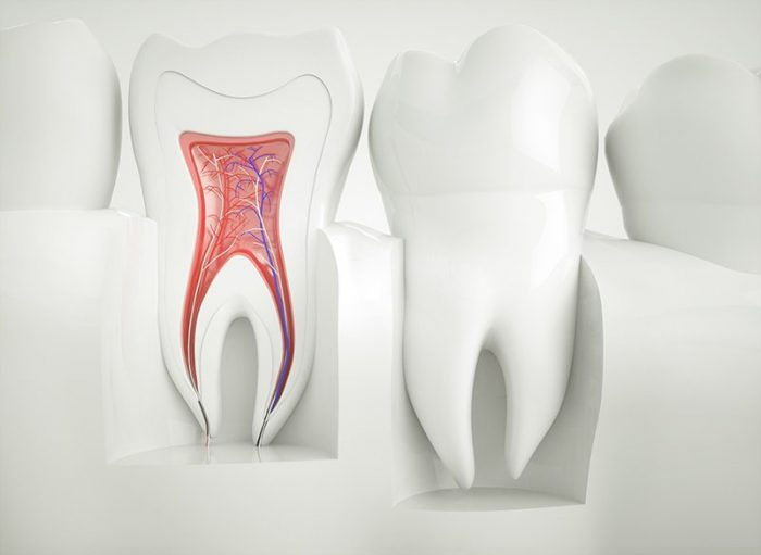 Dr Robins DDS Root Canals