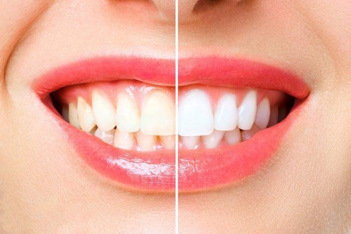 Dr Robins DDS Teeth Whitening